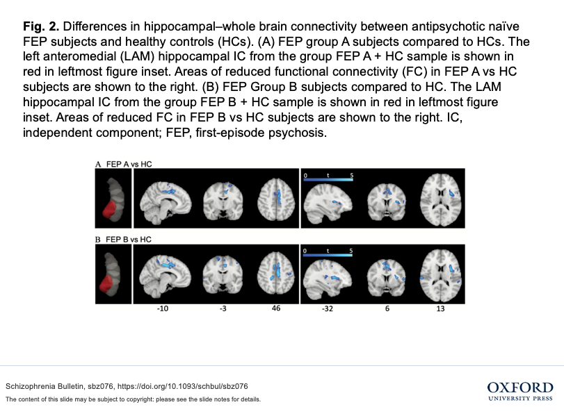 Figure summary of differences in hippocampal-whole brain connectivity between antipsychotic naive first-episode psychosis subjects and healthy controls.